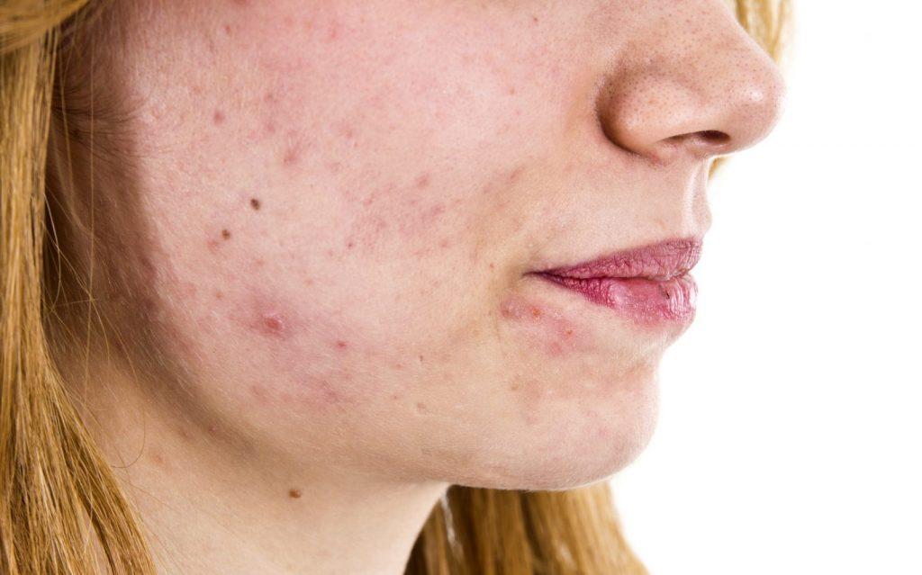 Haut einer jungen Frau mit Pickeln