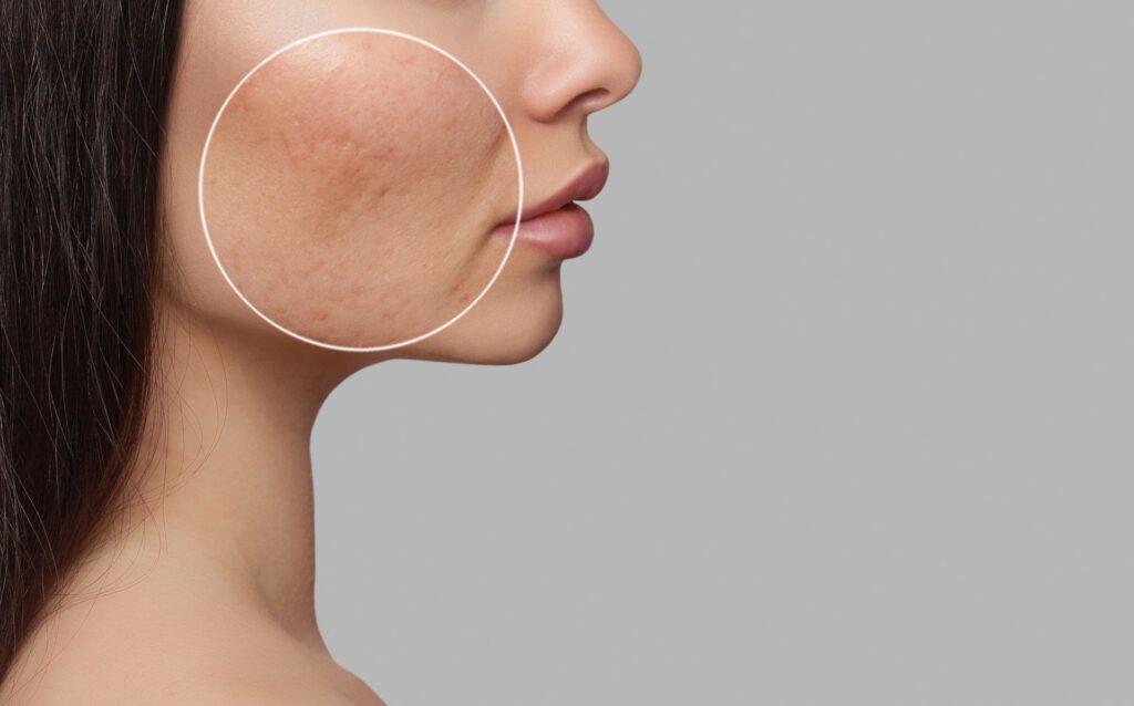 Frau mit Akne Narben im Gesicht